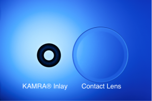 KAMRA® Inlay |Treatment for Presbyopia | Improves Reading Vision | Eye Associates of Washington D.C.