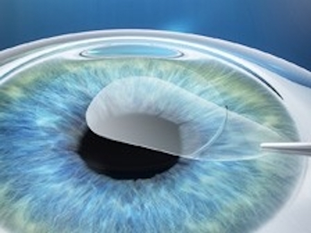 Small Incision Lenticule Extraction |